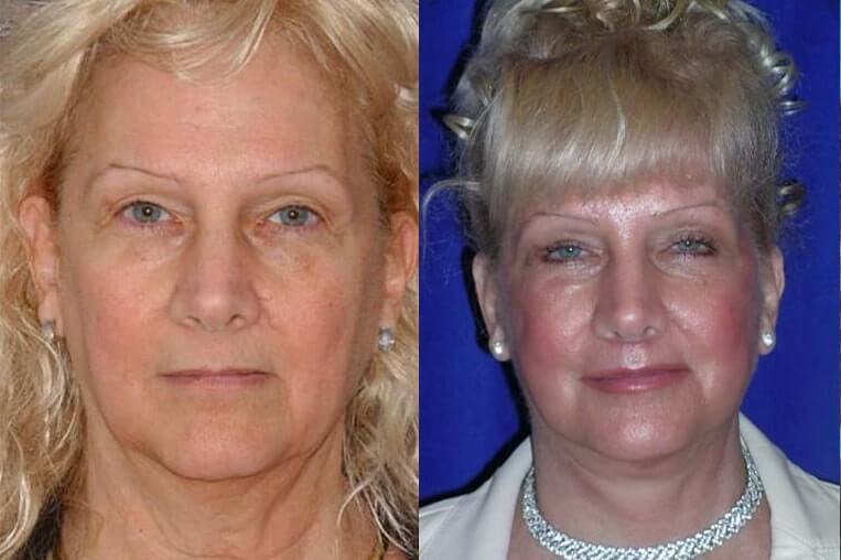 Eyelid Rejuvenation before and after patient 5 case 3463 front view