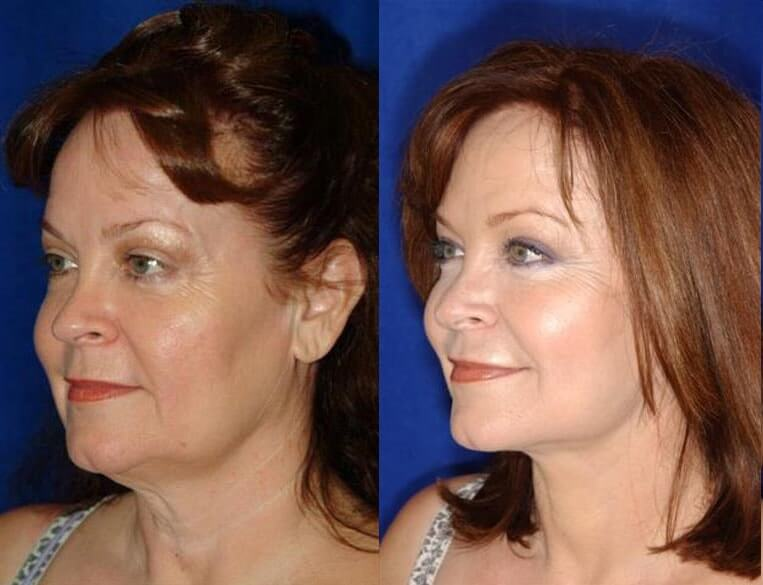 Eyelid Rejuvenation before and after patient 7 case 3467 side view