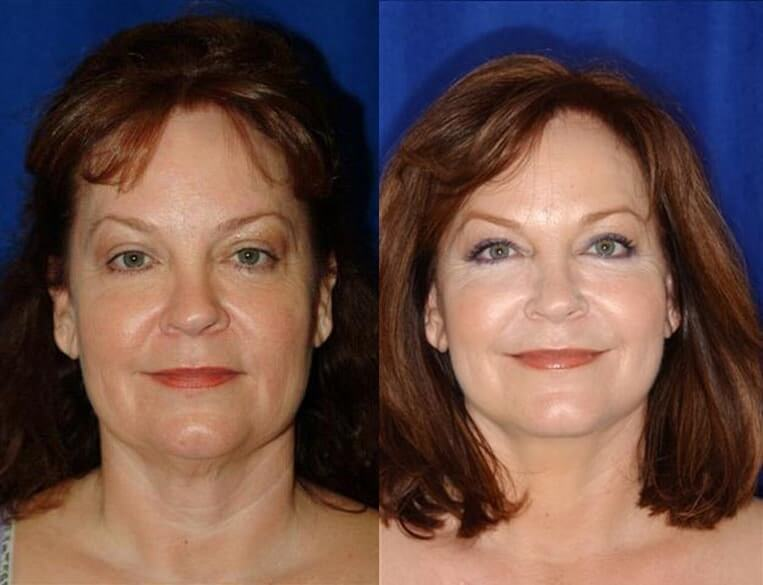 Eyelid Rejuvenation before and after patient 7 case 3467 front view