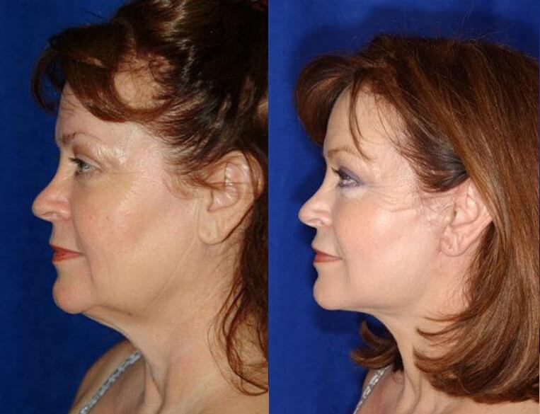 Eyelid Rejuvenation before and after patient 7 case 3467 side view 2