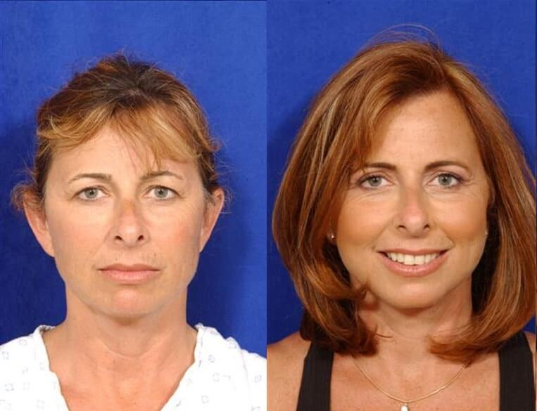 Eyelid Rejuvenation before and after patient 8 case 3475 front view