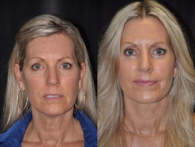 Lip lift before and after patient 01 case 5020 front view