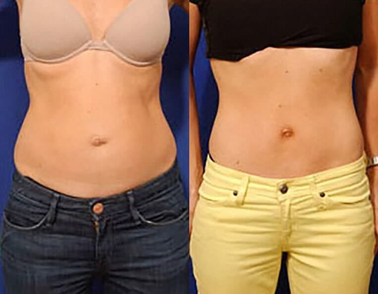 Liposculpture before and after patient 01 case 3073 overview