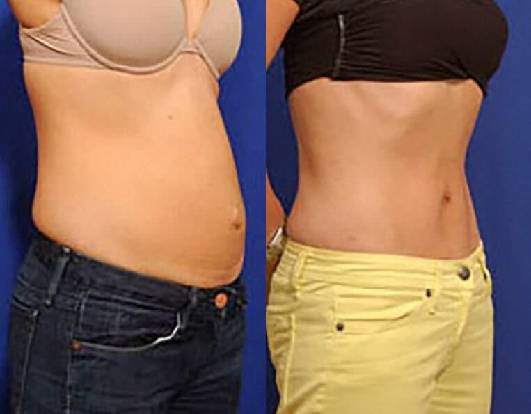 Liposculpture before and after patient 01 case 3073 side view
