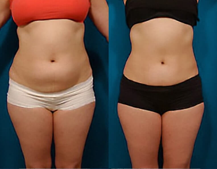 Liposculpture before and after patient 03 case 3085 overview
