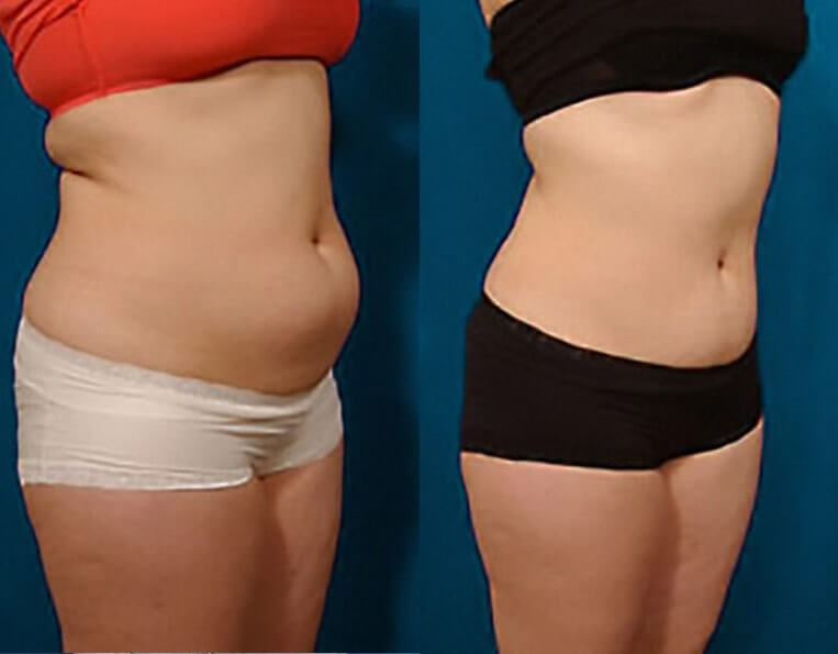Liposculpture before and after patient 02 case 3085 side view