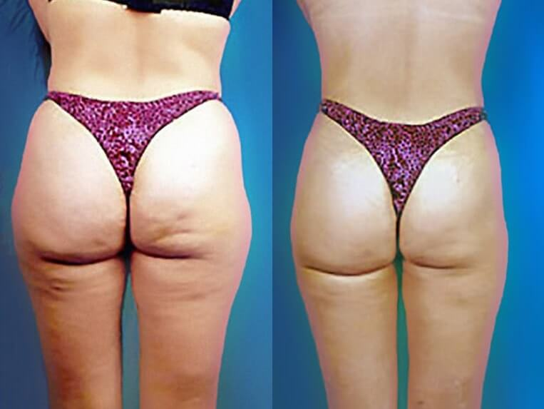 Liposculpture before and after patient 04 case 3091 side view