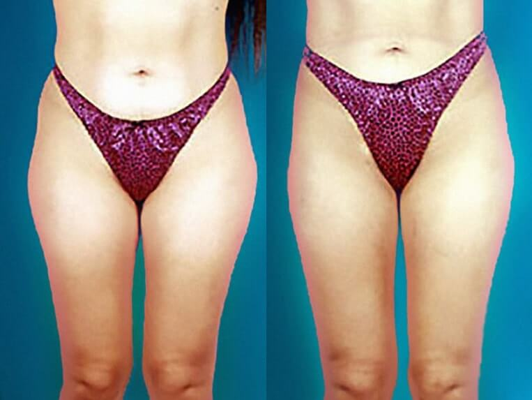 Liposculpture before and after patient 04 case 3091 overview
