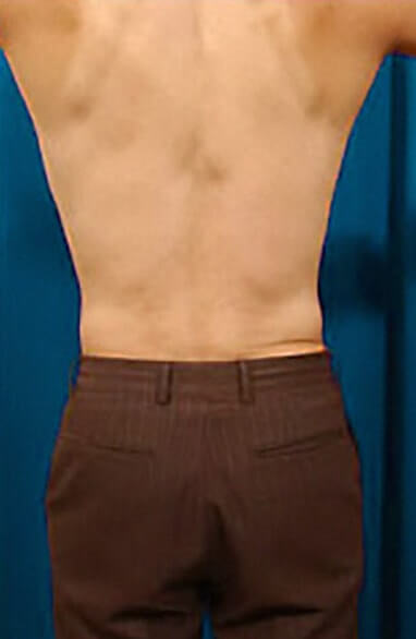 Liposculpture before and after patient 05 case 3097 back view