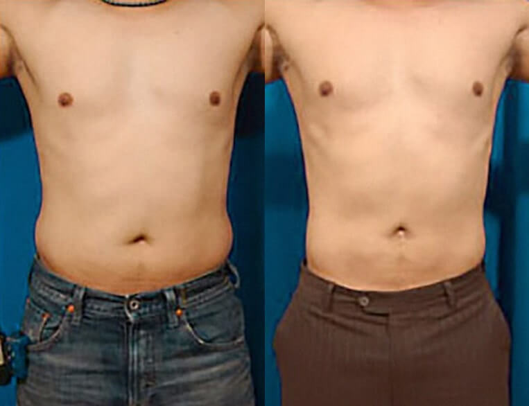 Liposculpture before and after patient 05 case 3097 overview