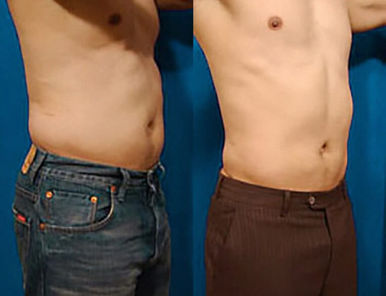 Liposculpture before and after patient 05 case 3097 side view