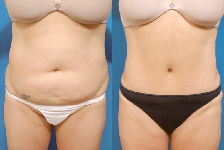Liposculpture before and after patient 06 case 3105 overview