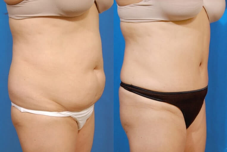 Liposculpture before and after patient 06 case 3105 side view