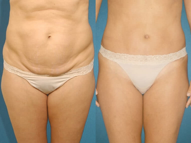 Liposculpture before and after patient 07 case 3111 overview