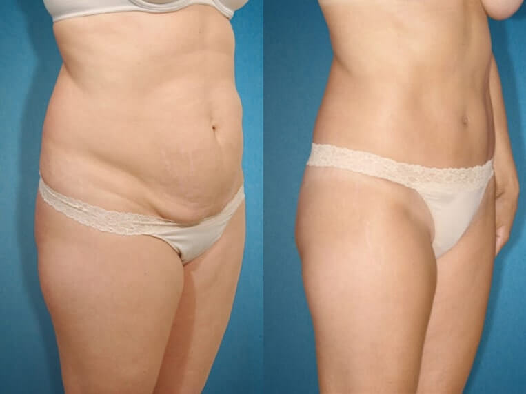 Liposculpture before and after patient 07 case 3111 side view