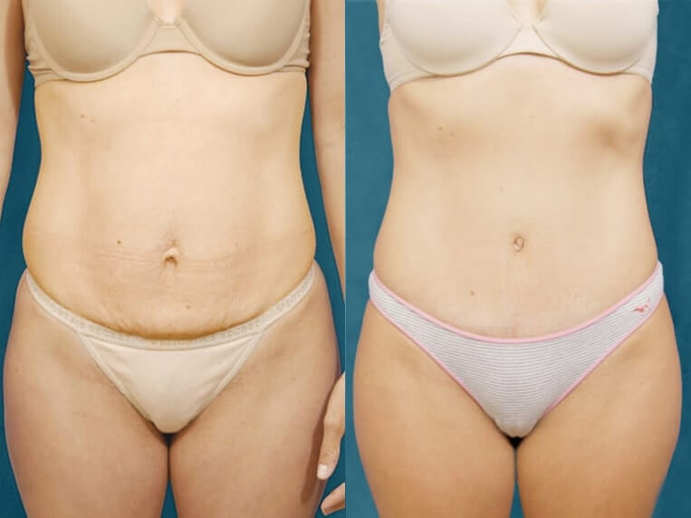 Liposculpture before and after patient 08 case 3117 overview