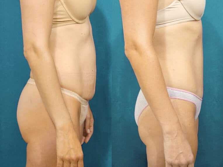 Liposculpture before and after patient 08 case 3117 side view