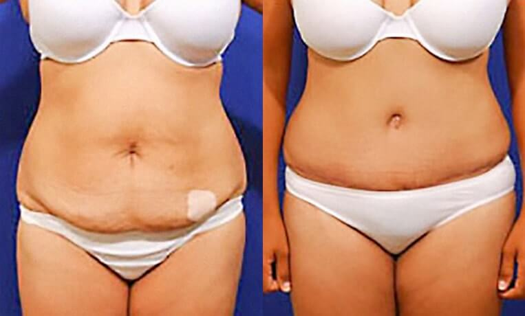 Liposculpture before and after patient 09 case 3125 overview
