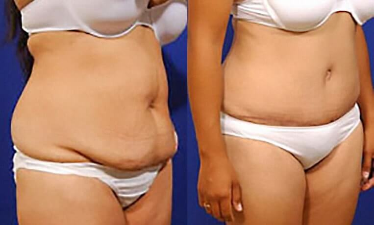 Liposculpture before and after patient 09 case 3125 side view