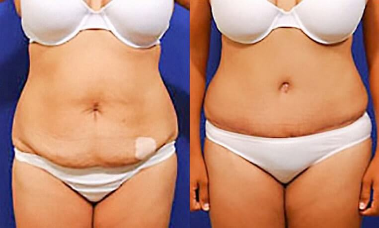 Liposuction before and after patient 01 case 3073 overview