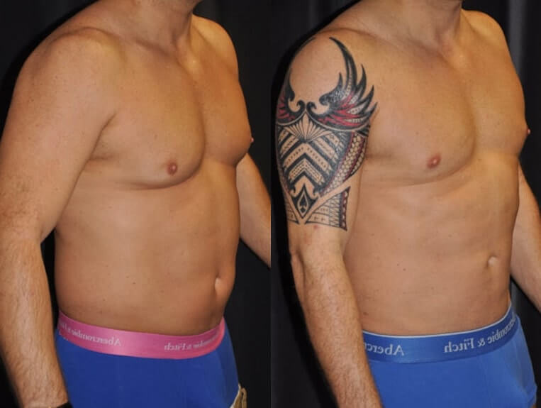 Liposuction before and after patient 01 case 3073 side view