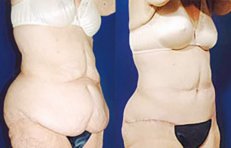 Arm lift before and after patient 01 case 3019 overview