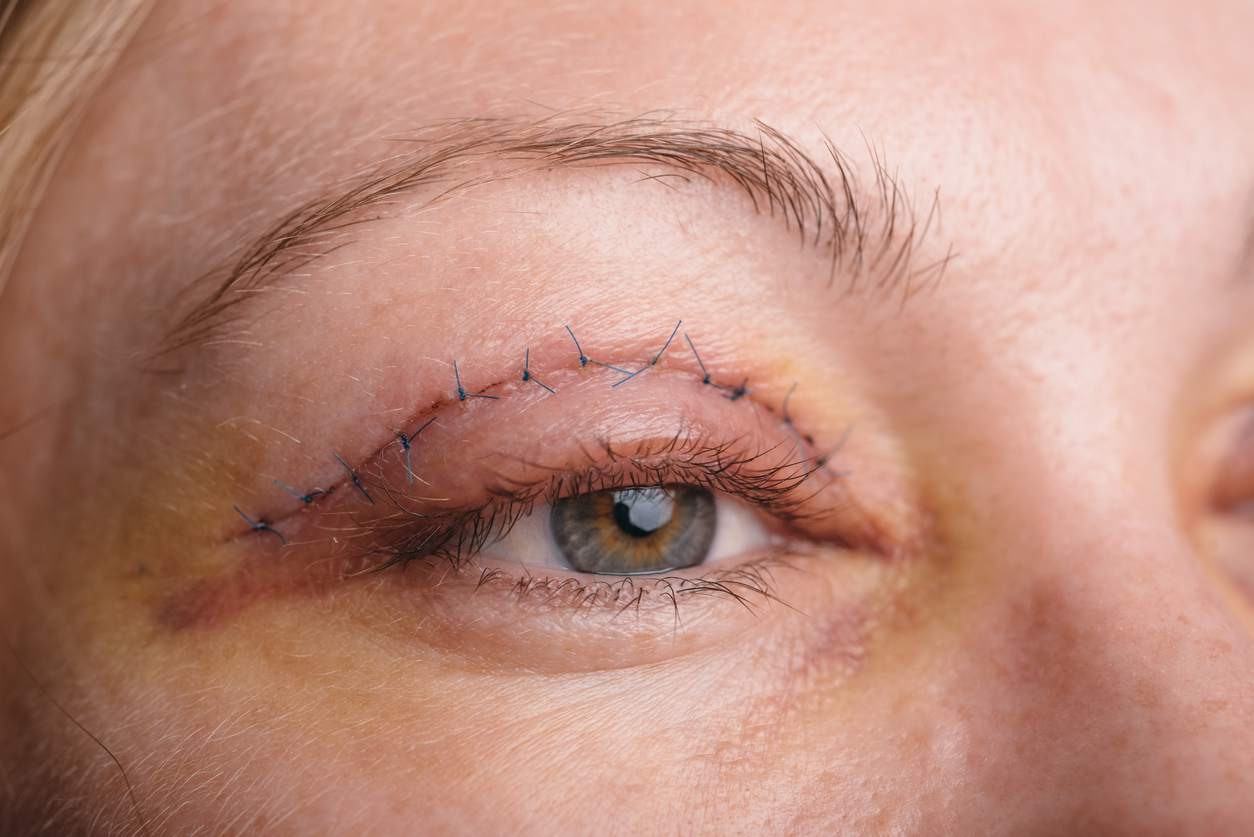 Woman with stitches in eyelid, learning about eyelid surgery recovery