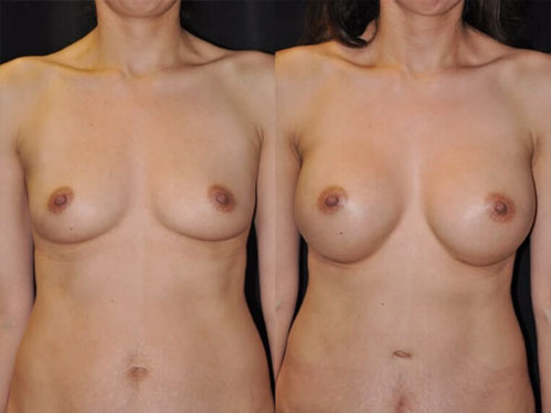 Breast augmentation procedure - Before and after picture of a patient