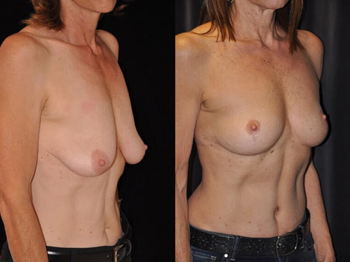 Breast lift procedure - Female patient before and after picture side view