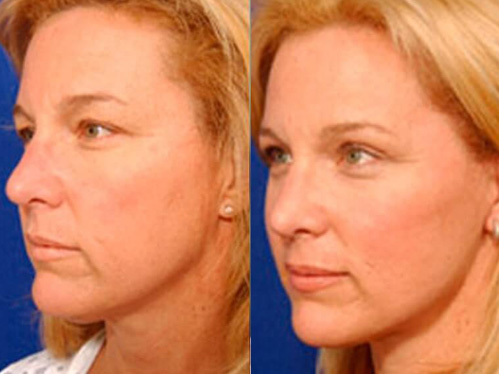 Browlift before and after patient 2 case 3301 3/4th side-view
