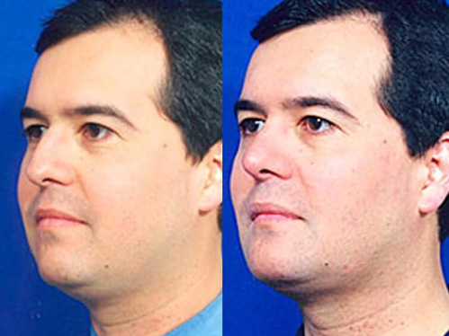 Buccal fat liposuction before and after patient 04 case 3131 3/4th side view