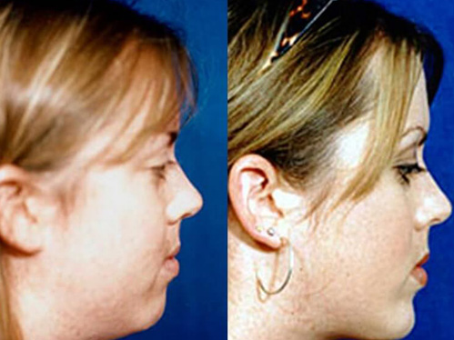 Buccal fat liposuction before and after patient 05 case 3319 side view