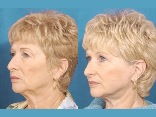 Eyelid rejuvenation before and after patient 03 case 3445 side view