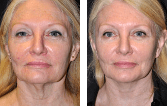 Facelift before and after patient 1 case 5192 front view