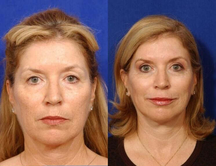 Lip Augmentation before and after patient 01 case 5004 front view