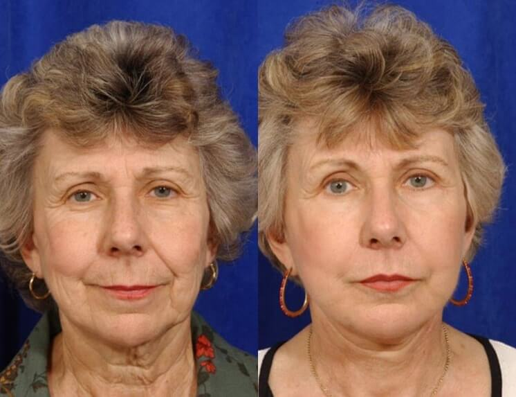 Lip Augmentation before and after patient 02 case 5008 front view