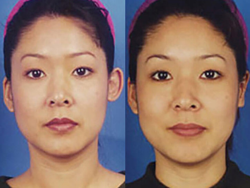 Otoplasty Ear Surgery before and after patient 021 case 4998 front view