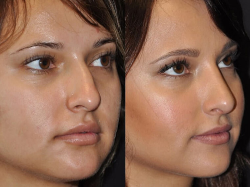 Rhinoplasty Beverly Hills before and after patient 1 case 5520 side view