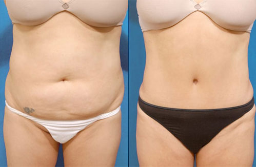 Before and after pictures of a tummy tuck patient