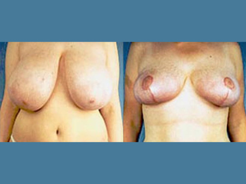 Breast reduction procedure - Female patient before and after picture