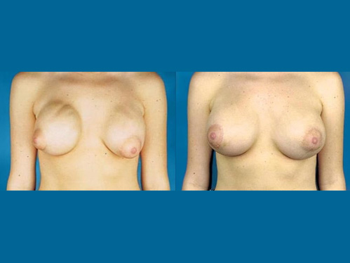 Breast implant revision procedure - Before and after picture of a patient