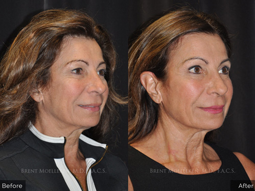 Browlift before and after patient 4 case 3314 3/4th side-view