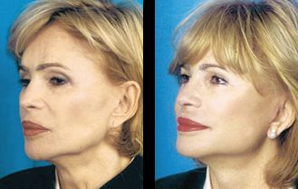 Revision Facelift before and after patient 1 case 4970 3/4th side view