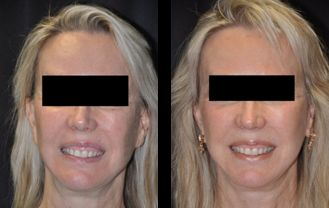 Revision Facelift before and after patient 3 case 4980 front view