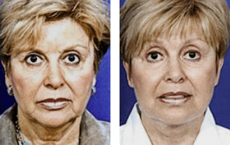 Facelift before and after patient 3 case 3507 front view