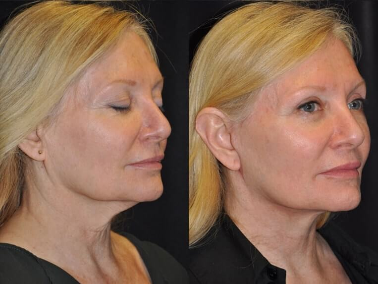 Facelift Before And After Patient 01 Case 5192 3/4th side View