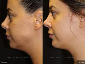 facelift-lipo-before-and-after-3-left-side-patient-1-dr-brent-moelleken
