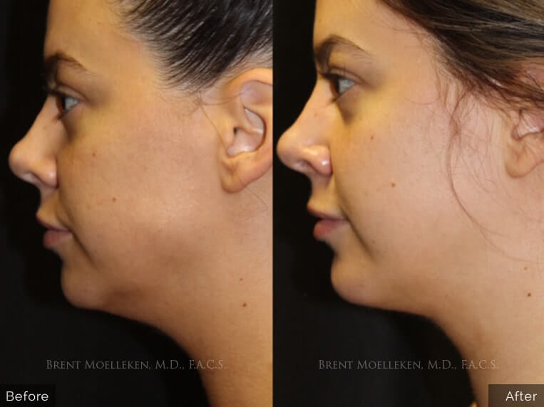 Facelift before and after patient front view