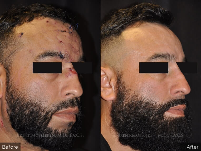 Scar revision before and after patient 2 case 4963 side view