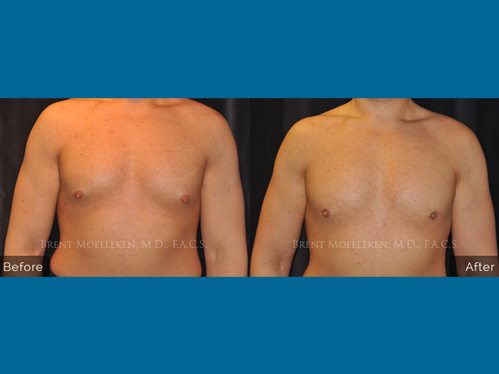Gynecomastia procedure - Before and after picture of a patient front view